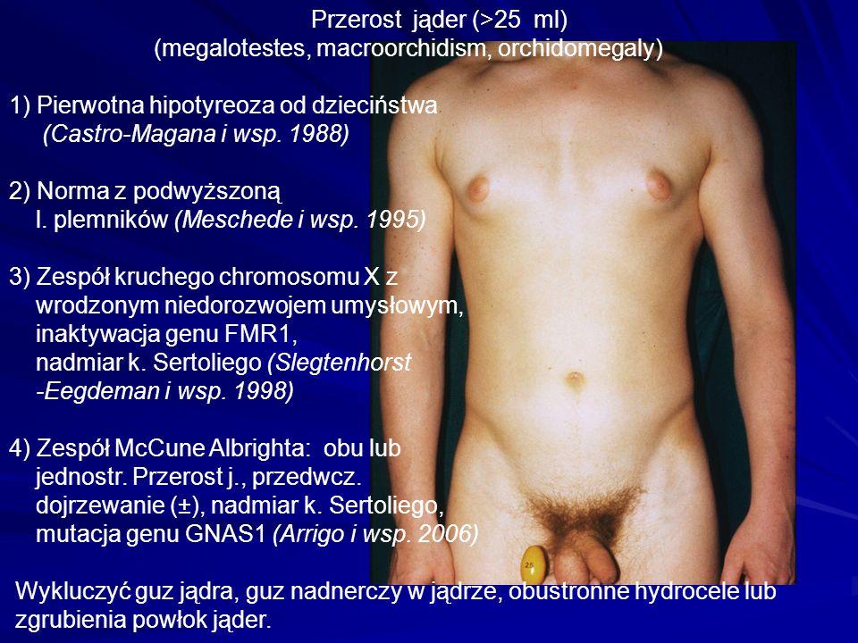 Przerost jąder (>25 ml) (megalotestes, macroorchidism, orchidomegaly) 1) Pierwotna hipotyreoza od dzieciństwa (Castro-Magana i wsp.