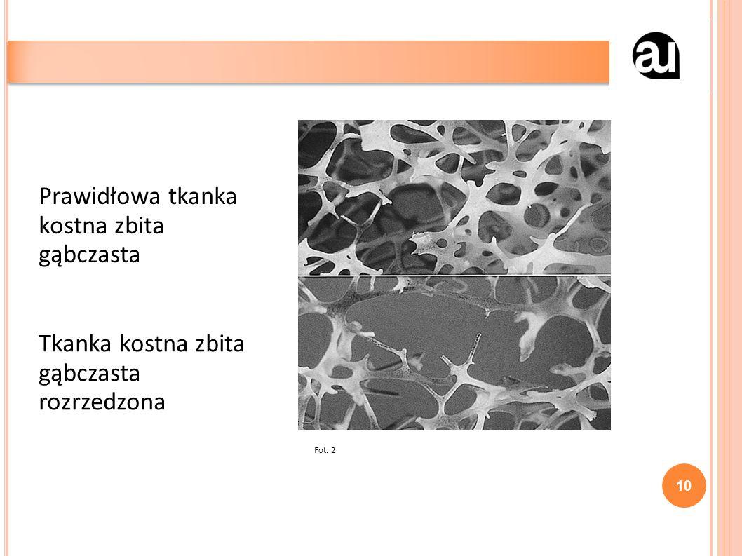 10 Prawidłowa tkanka kostna zbita gąbczasta Tkanka kostna zbita gąbczasta rozrzedzona Fot. 2