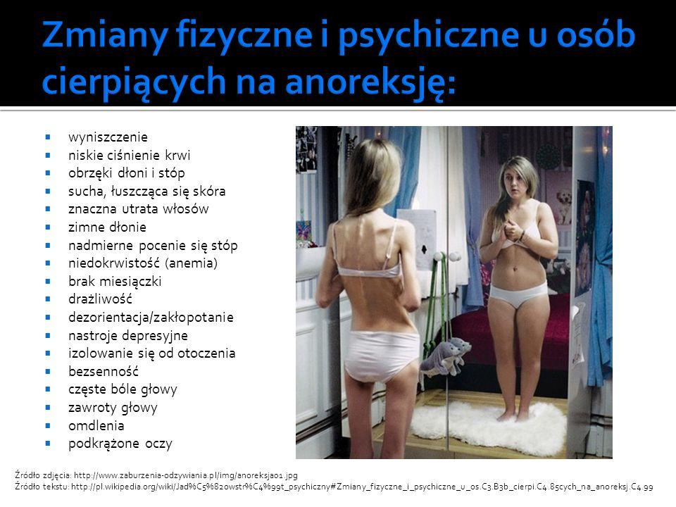 Anoreksja prowadzi do śmierci przez wycieńczenie.