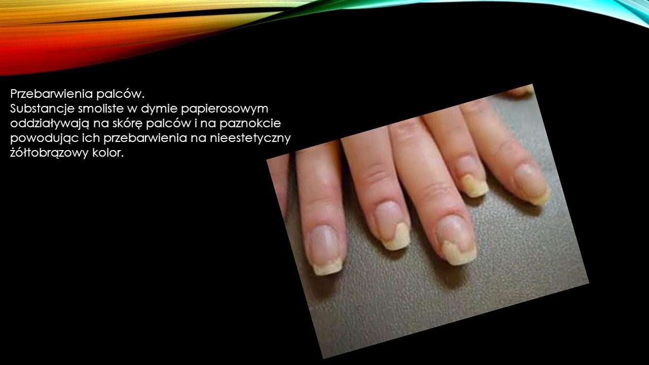 Przebarwienia palców.