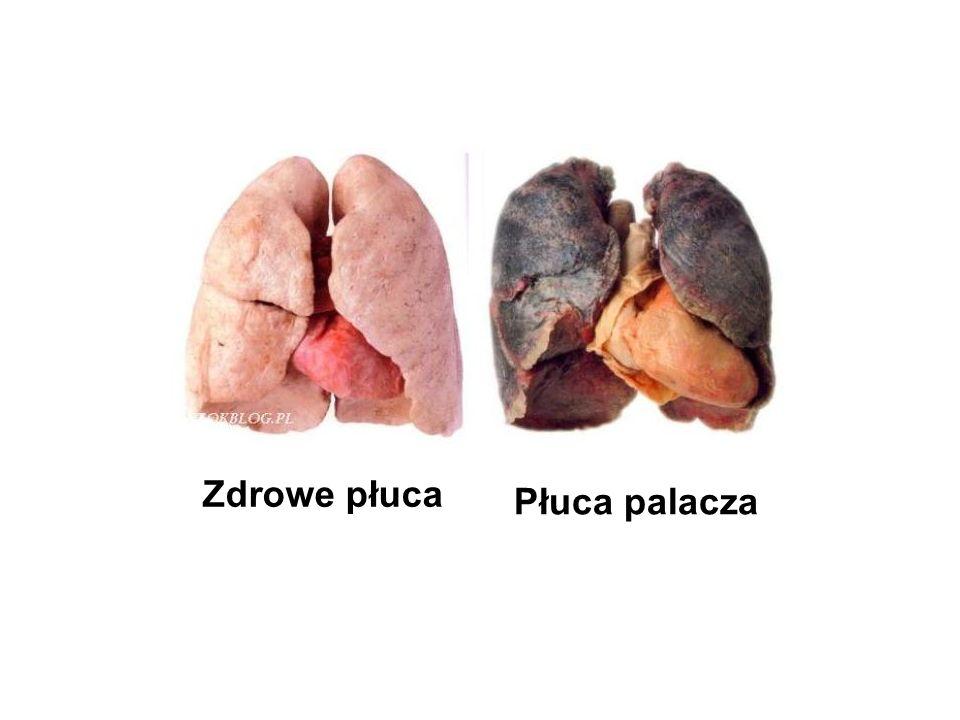 Zdrowe płuca Płuca palacza