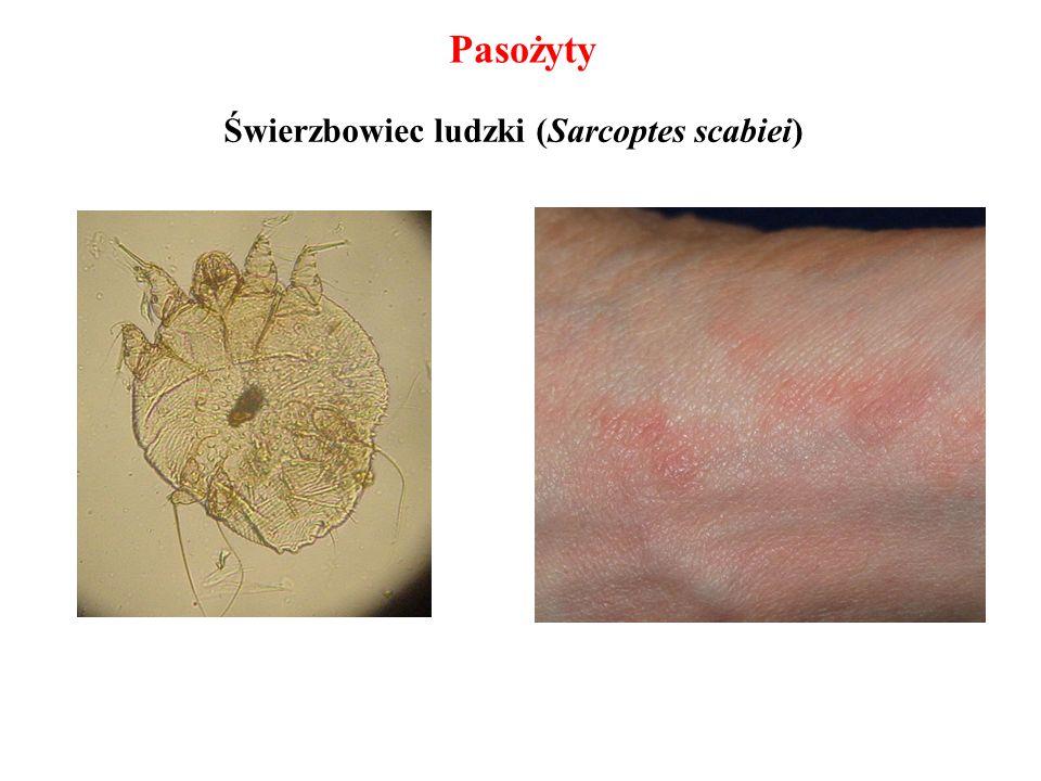 Świerzbowiec ludzki (Sarcoptes scabiei) Pasożyty