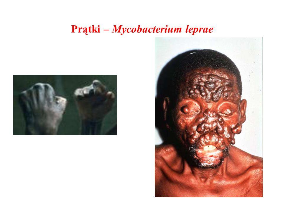 Prątki – Mycobacterium leprae