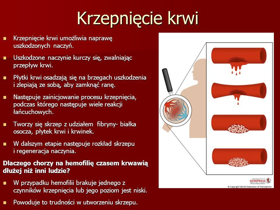 Krzepnięcie krwi Krzepnięcie krwi umożliwia naprawę uszkodzonych naczyń. Krzepnięcie krwi umożliwia naprawę uszkodzonych naczyń. Uszkodzone naczynie k