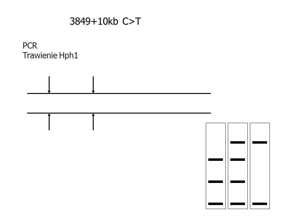 3849+10kb C>T PCR Trawienie Hph1