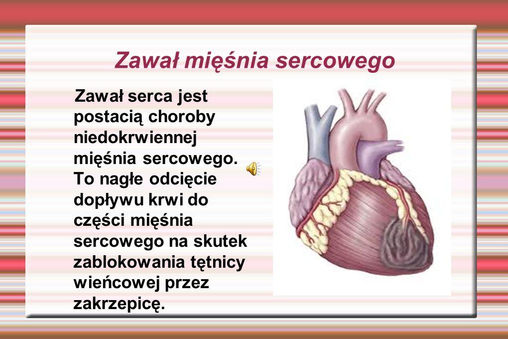 Zawał mięśnia sercowego Zawał serca jest postacią choroby niedokrwiennej mięśnia sercowego.