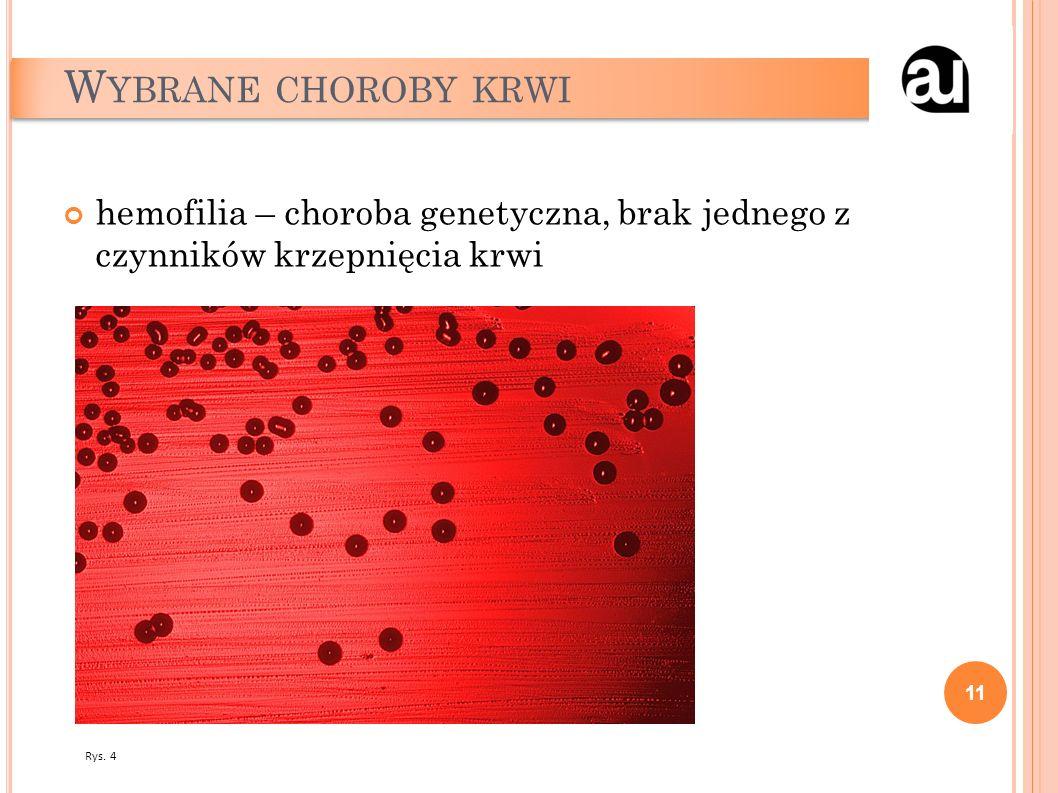 W YBRANE CHOROBY KRWI hemofilia – choroba genetyczna, brak jednego z czynników krzepnięcia krwi 11 Rys. 4