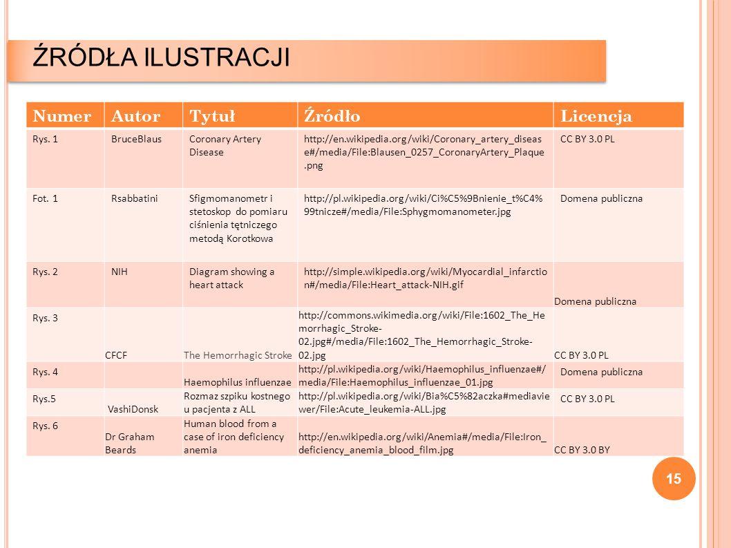 15 ŹRÓDŁA ILUSTRACJI NumerAutorTytułŹródłoLicencja Rys. 1BruceBlausCoronary Artery Disease http://en.wikipedia.org/wiki/Coronary_artery_diseas e#/medi