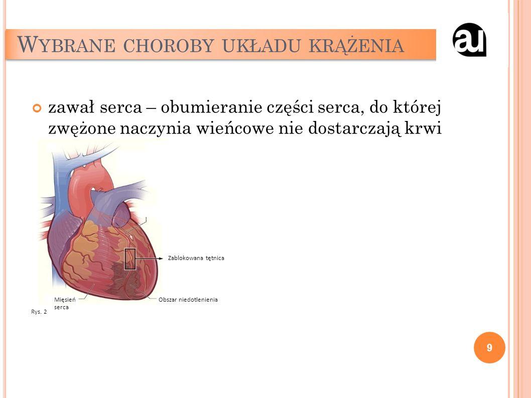 W YBRANE CHOROBY UKŁADU KRĄŻENIA zawał serca – obumieranie części serca, do której zwężone naczynia wieńcowe nie dostarczają krwi 9 Zablokowana tętnic