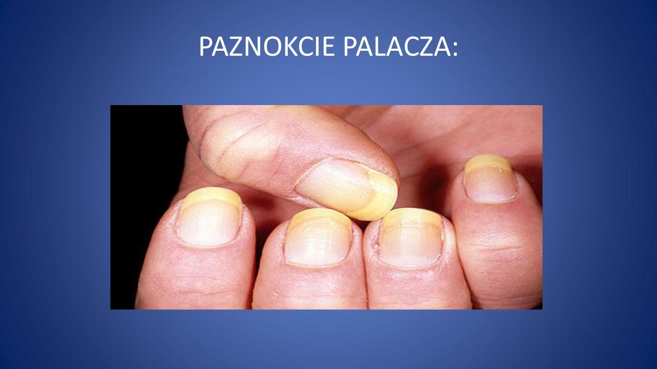 PAZNOKCIE PALACZA: