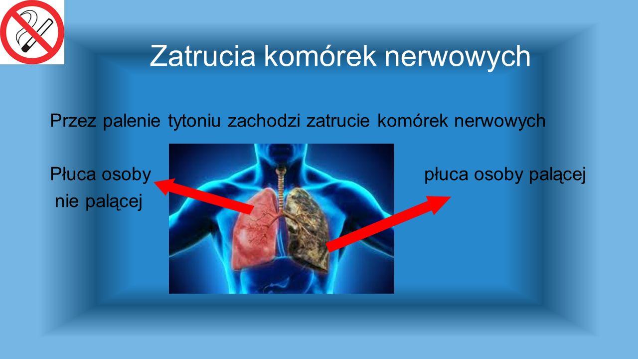 Zatrucia komórek nerwowych Przez palenie tytoniu zachodzi zatrucie komórek nerwowych Płuca osoby płuca osoby palącej nie palącej