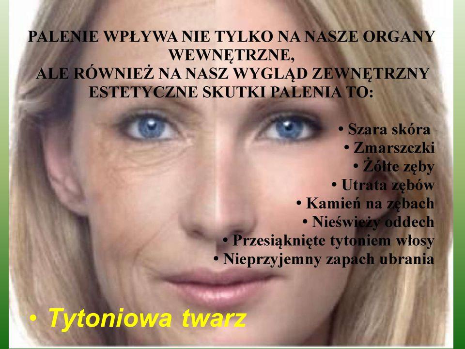 Co Grozi Palaczowi ???.