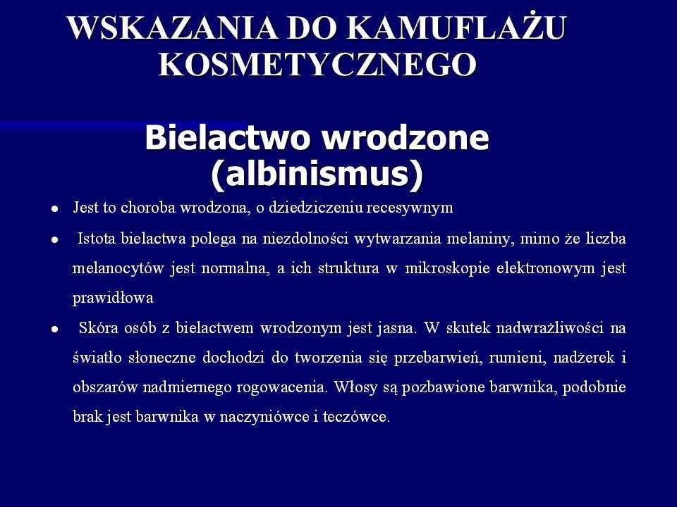 WSKAZANIA DO KAMUFLAŻU KOSMETYCZNEGO Bielactwo wrodzone (albinismus)