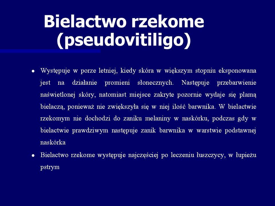 Bielactwo rzekome (pseudovitiligo)