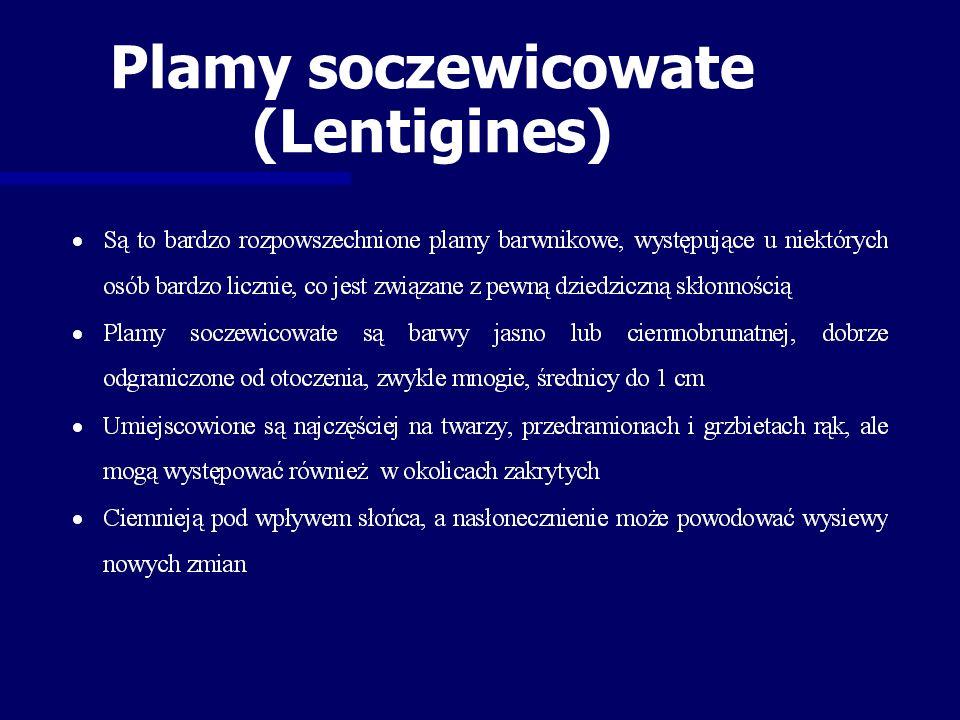 Plamy soczewicowate (Lentigines)