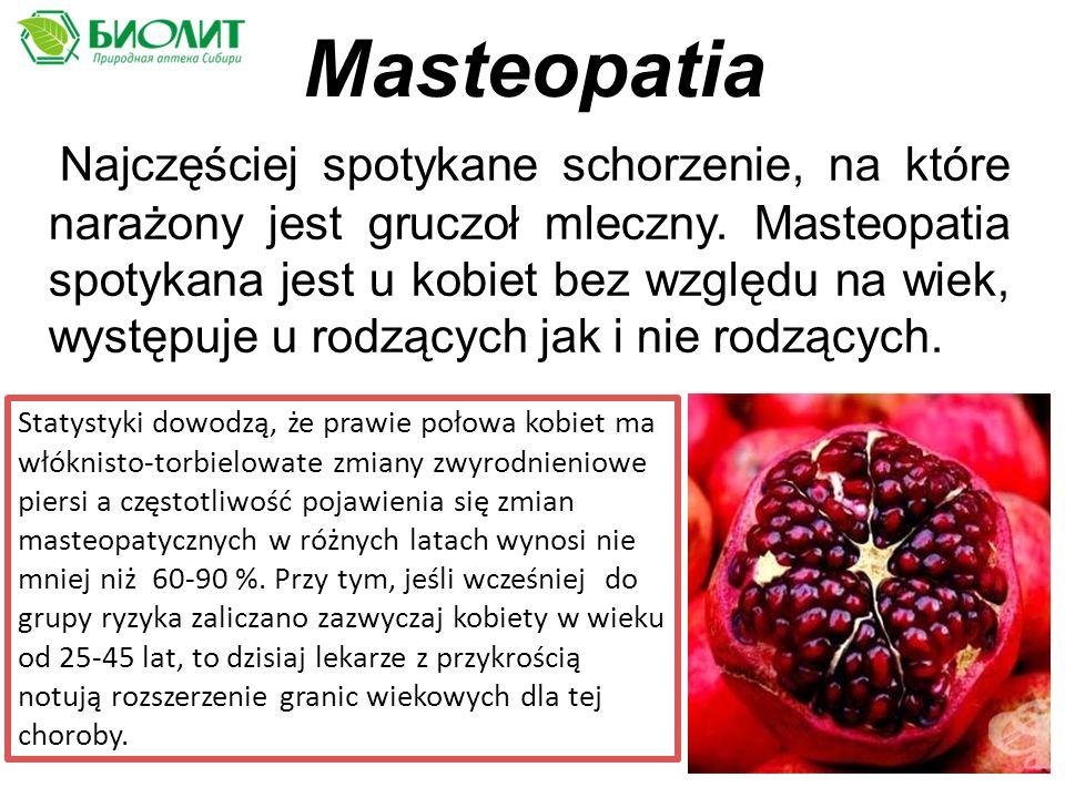 Masteopatia Najczęściej spotykane schorzenie, na które narażony jest gruczoł mleczny.