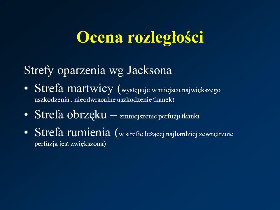 Ocena rozległości Strefy oparzenia wg Jacksona Strefa martwicy ( występuje w miejscu największego uszkodzenia, nieodwracalne uszkodzenie tkanek) Strefa obrzęku – zmniejszenie perfuzji tkanki Strefa rumienia ( w strefie leżącej najbardziej zewnętrznie perfuzja jest zwiększona)