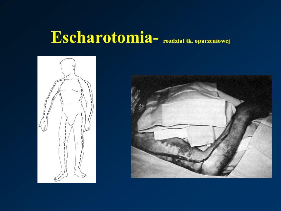 Escharotomia- rozdział tk. oparzeniowej