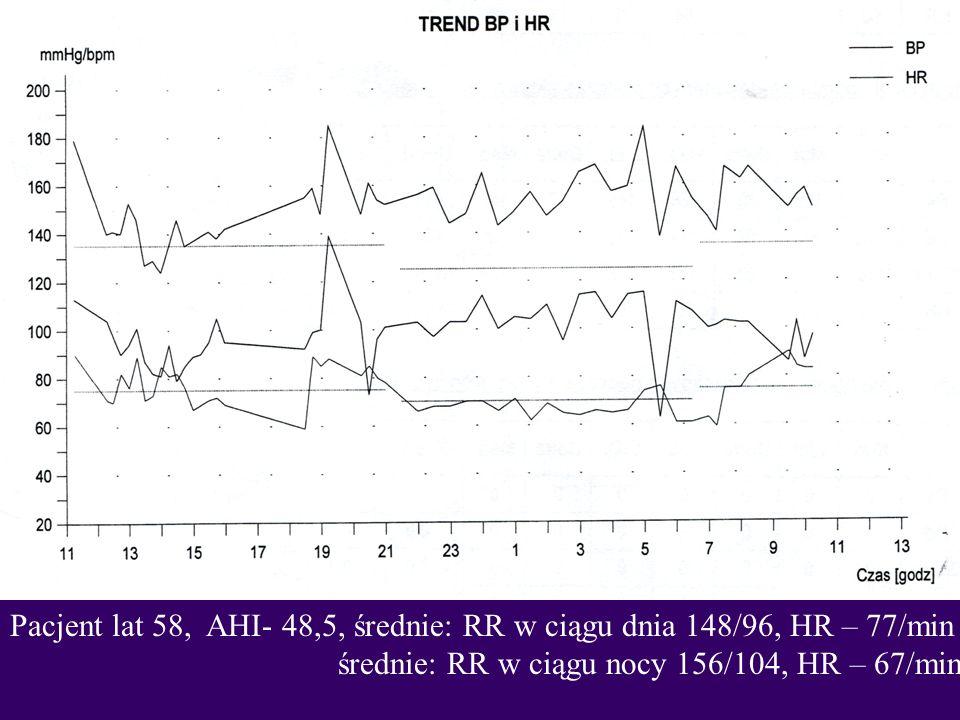Pacjent lat 58, AHI- 48,5, średnie: RR w ciągu dnia 148/96, HR – 77/min średnie: RR w ciągu nocy 156/104, HR – 67/min