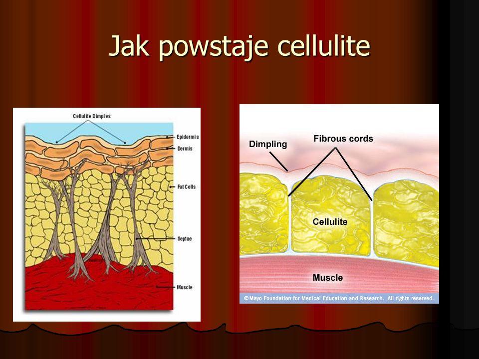 Jak powstaje cellulite