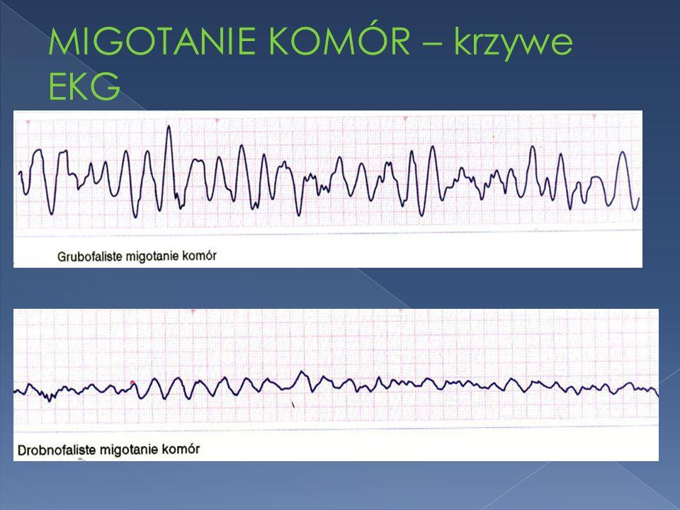 MIGOTANIE KOMÓR – krzywe EKG