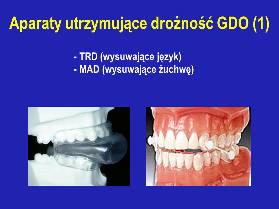 - TRD (wysuwające język) - MAD (wysuwające żuchwę) Aparaty utrzymujące drożność GDO (1)