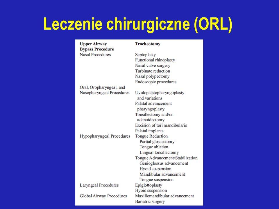 Leczenie chirurgiczne (ORL)