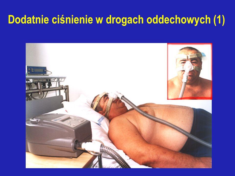 """Metody behawioralne (2) Pozycja ciała w czasie snu - AHI - zwiększa się w pozycji na wznak a zmniejsza się w przypadku uniesienia wezgłowia o 30-60% lub spania na boku - wymuszenie pozycji ciała: *alarm akustyczny *wszycie piłki tenisowej w """"plecy piżamy - terapia ułożeniowa jest wskazana jeśli: AHI w pozycji na wznak jest co najmniej 2x większy niż w pozycji na boku i AHI w pozycji na boku <10/godzinę Nieskuteczna u chorych bardzo otyłych z ciężkim OBS"""