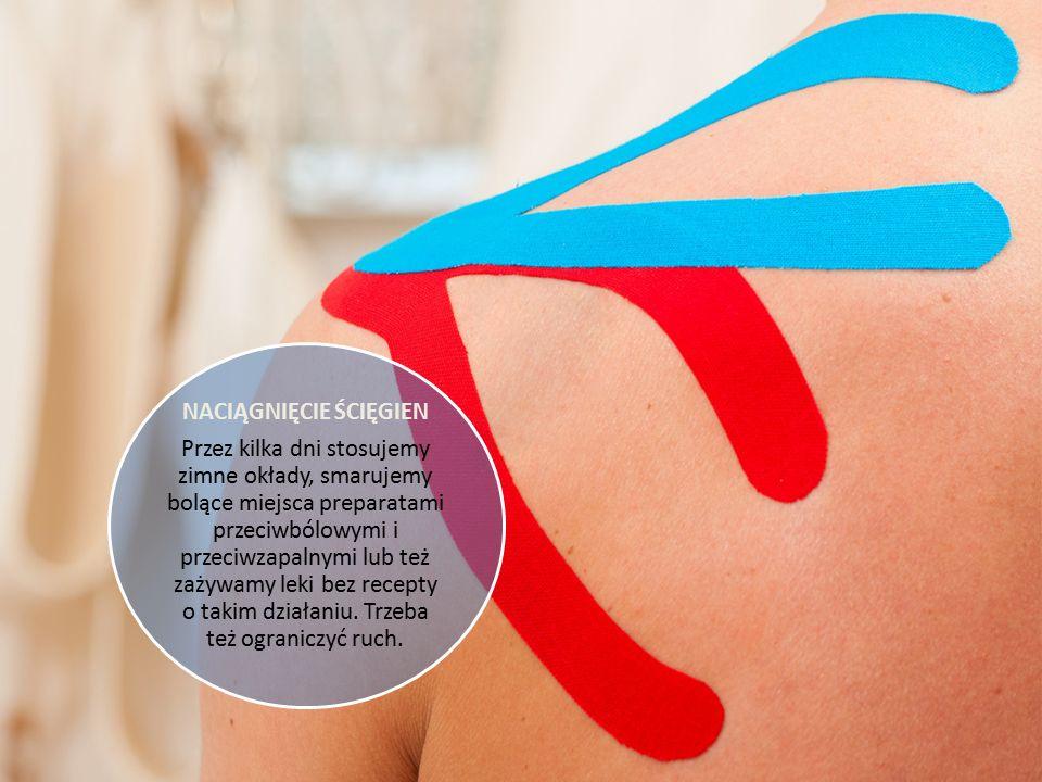 SKRĘCENIE KOSTKI Jeśli uszkodzenie jest niewielkie, wystarczy przykładać zimne kompresy, ograniczyć chodzenie do minimum, trzymać nogę w poziomie i lekko usztywnić kostkę opaską elastyczną lub bandażem.