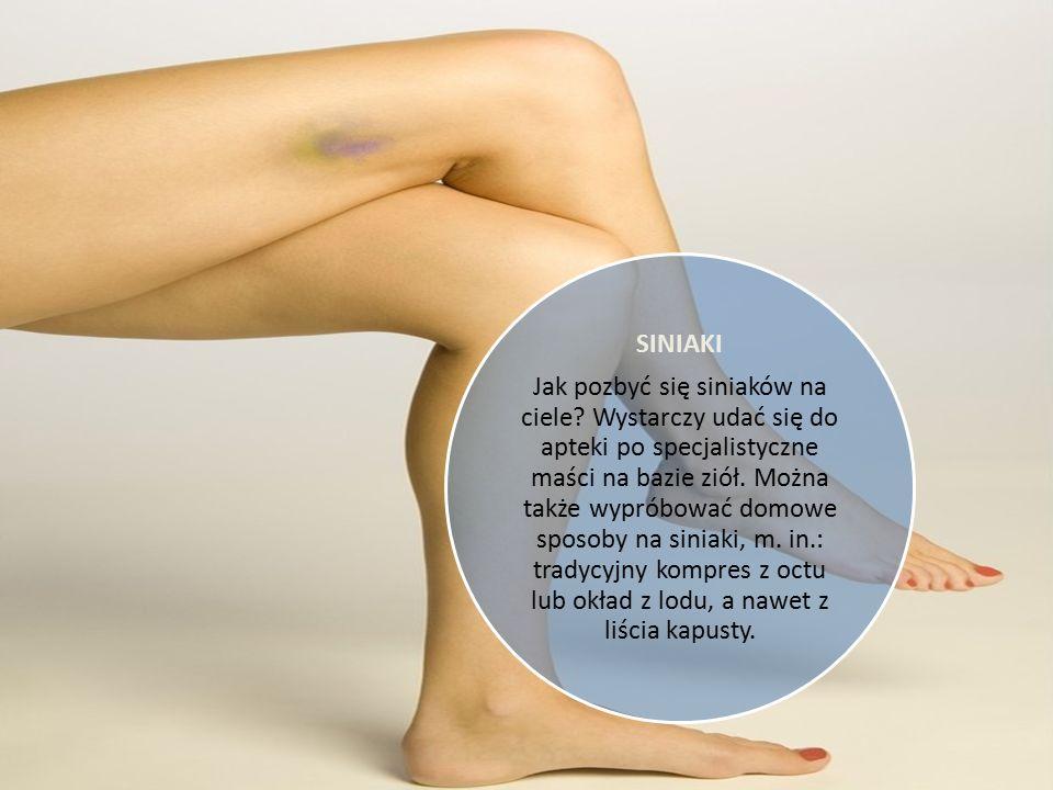 ZWICHNIĘTY BARK Należy przyjąć leki przeciwbólowe, ułożyć rękę na temblaku i pilnie udać się do ortopedy, aby nastawił staw i go unieruchomił.