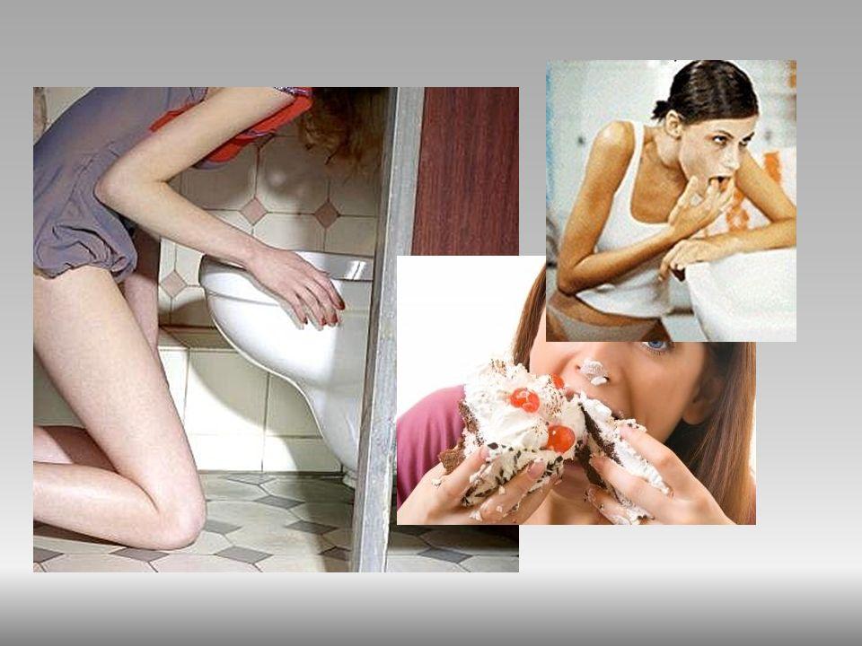 Żarłoczność psychiczna. Bulimia, podobnie jak anoreksja jest chorobą o podłożu psychicznym. Są to okresowe napady żarłoczności z utratą kontroli nad i