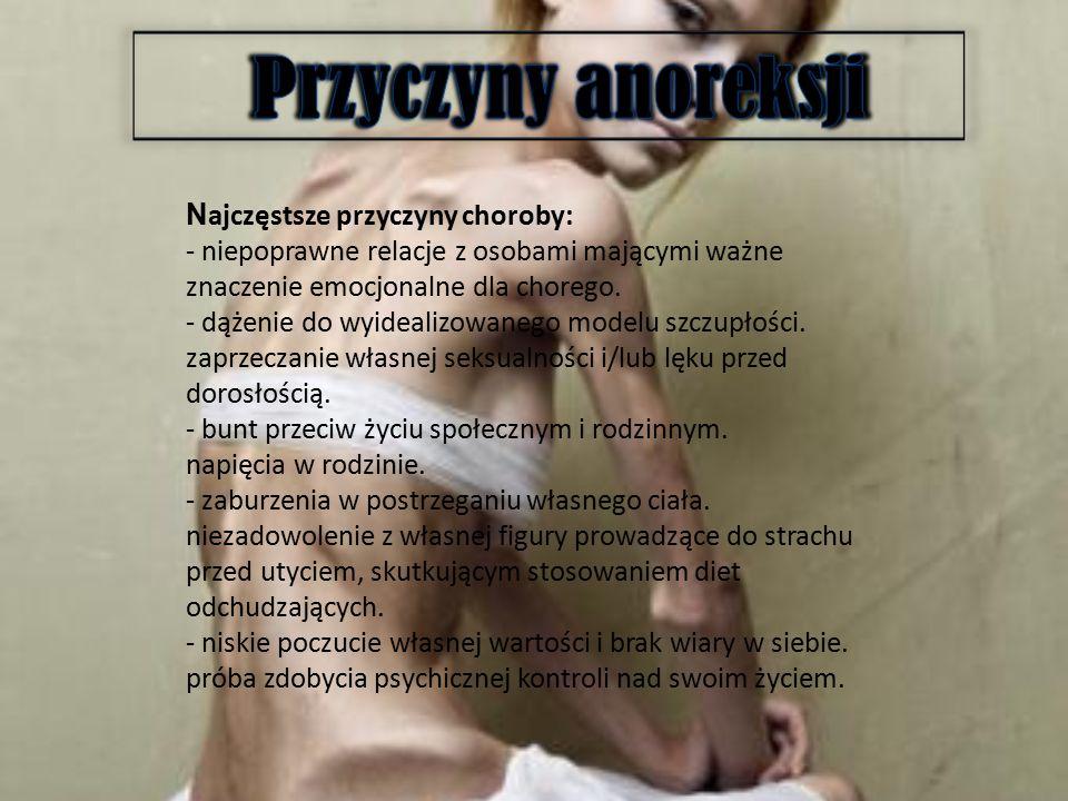Anoreksja zwana niekiedy
