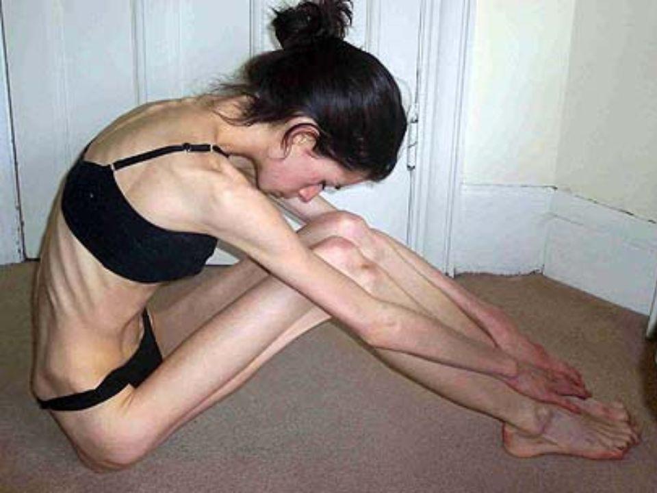 Choroba prowadzi do: - całkowitego zaprzestania przyjmowania pokarmów. - anemii, zaburzeń hormonalnych, spowolnienia metabolizmu. -zniszczenia cery, w