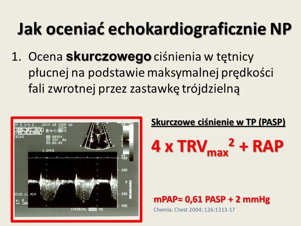 Jak oceniać echokardiograficznie NP skurczowego 1.Ocena skurczowego ciśnienia w tętnicy płucnej na podstawie maksymalnej prędkości fali zwrotnej przez zastawkę trójdzielną Skurczowe ciśnienie w TP (PASP) 4 x TRV max 2 + RAP mPAP= 0,61 PASP + 2 mmHg Chemla: Chest 2004; 126:1313-17