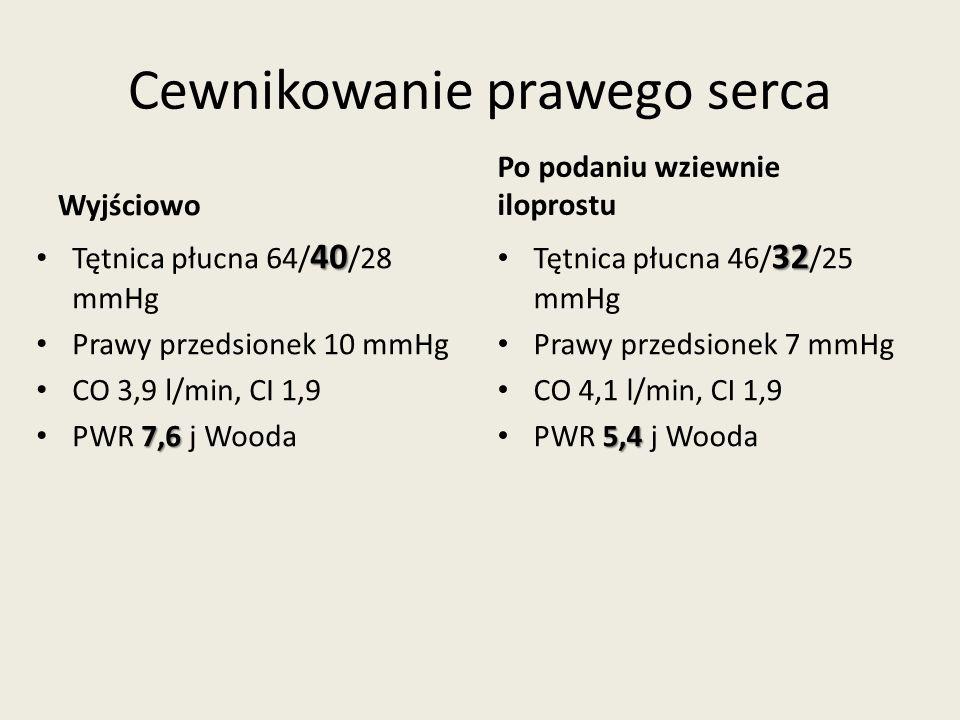 Cewnikowanie prawego serca Wyjściowo 40Tętnica płucna 64/ 40 /28 mmHg Prawy przedsionek 10 mmHg CO 3,9 l/min, CI 1,9 7,6PWR 7,6 j Wooda Po podaniu wziewnie iloprostu 32 Tętnica płucna 46/ 32 /25 mmHg Prawy przedsionek 7 mmHg CO 4,1 l/min, CI 1,9 5,4 PWR 5,4 j Wooda