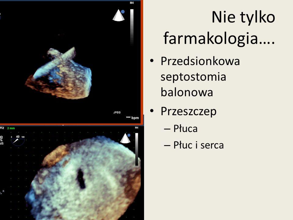 Przedsionkowa septostomia balonowa Przeszczep – Płuca – Płuc i serca Nie tylko farmakologia….