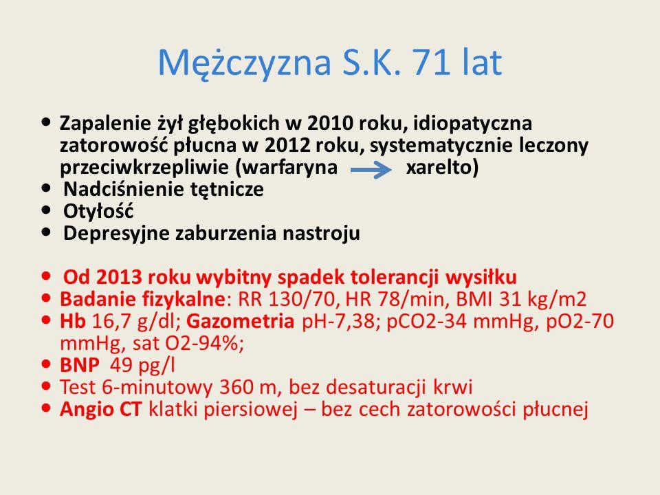 Mężczyzna S.K. 71 lat Zapalenie żył głębokich w 2010 roku, idiopatyczna zatorowość płucna w 2012 roku, systematycznie leczony przeciwkrzepliwie (warfa