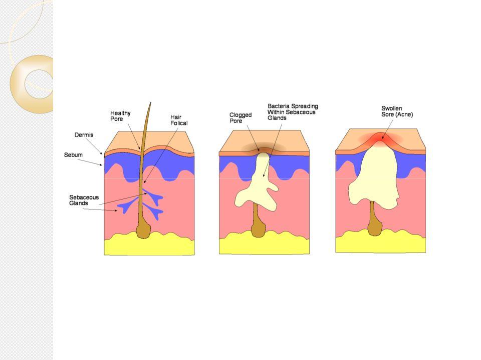Mało nasilony trądzik grudkowo-krostkowy Powstawanie blizn Znaczący wpływ na psychikę przy nieskuteczności leczenia rutynowego
