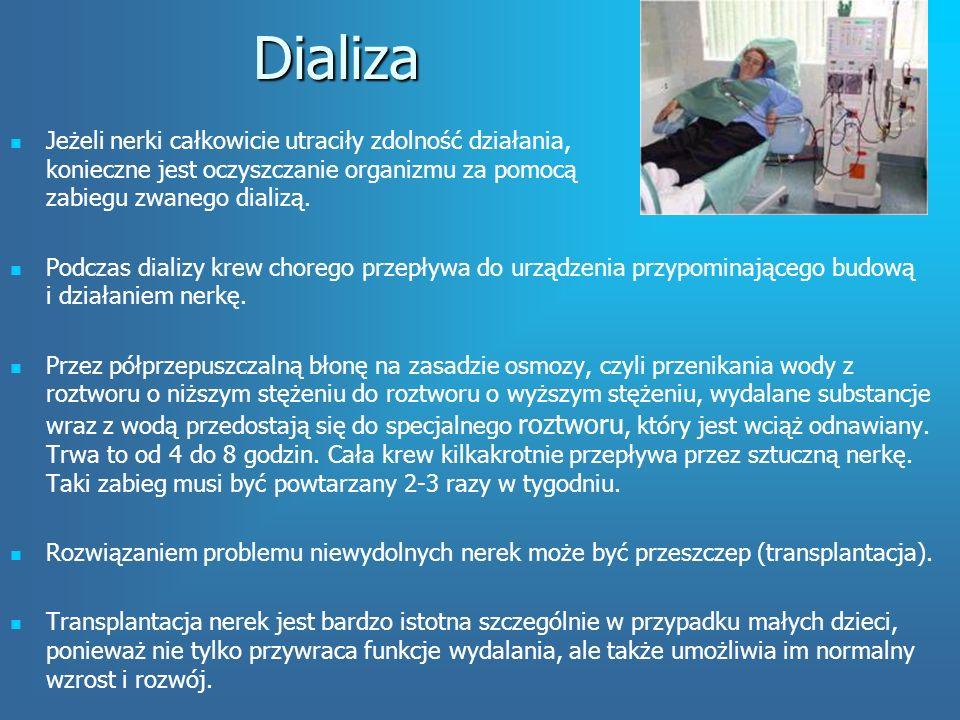 Dializa Jeżeli nerki całkowicie utraciły zdolność działania, konieczne jest oczyszczanie organizmu za pomocą zabiegu zwanego dializą.