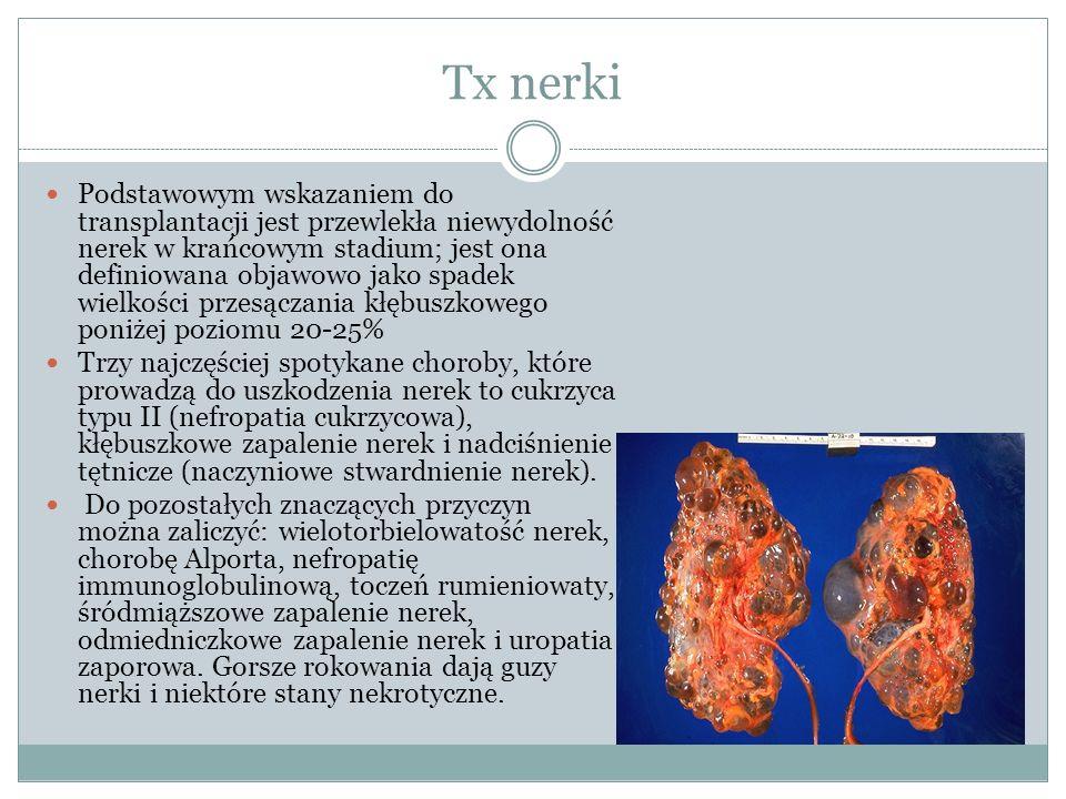 Tx nerki Podstawowym wskazaniem do transplantacji jest przewlekła niewydolność nerek w krańcowym stadium; jest ona definiowana objawowo jako spadek wielkości przesączania kłębuszkowego poniżej poziomu 20-25% Trzy najczęściej spotykane choroby, które prowadzą do uszkodzenia nerek to cukrzyca typu II (nefropatia cukrzycowa), kłębuszkowe zapalenie nerek i nadciśnienie tętnicze (naczyniowe stwardnienie nerek).