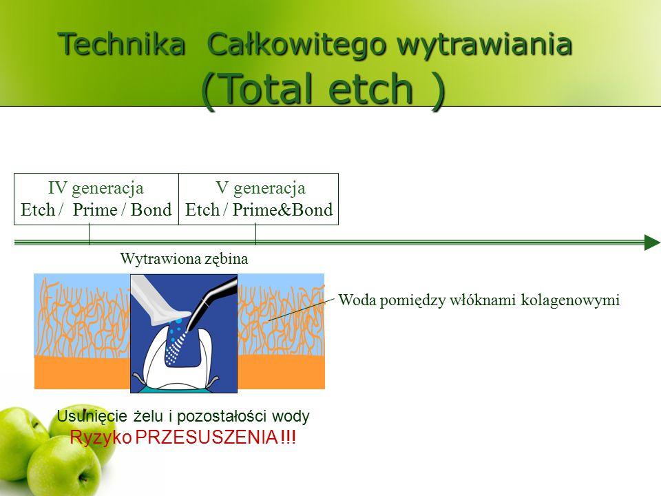 Technika Całkowitego wytrawiania (Total etch ) IV generacja Etch / Prime / Bond V generacja Etch / Prime&Bond Usunięcie żelu i pozostałości wody Ryzyko PRZESUSZENIA !!!