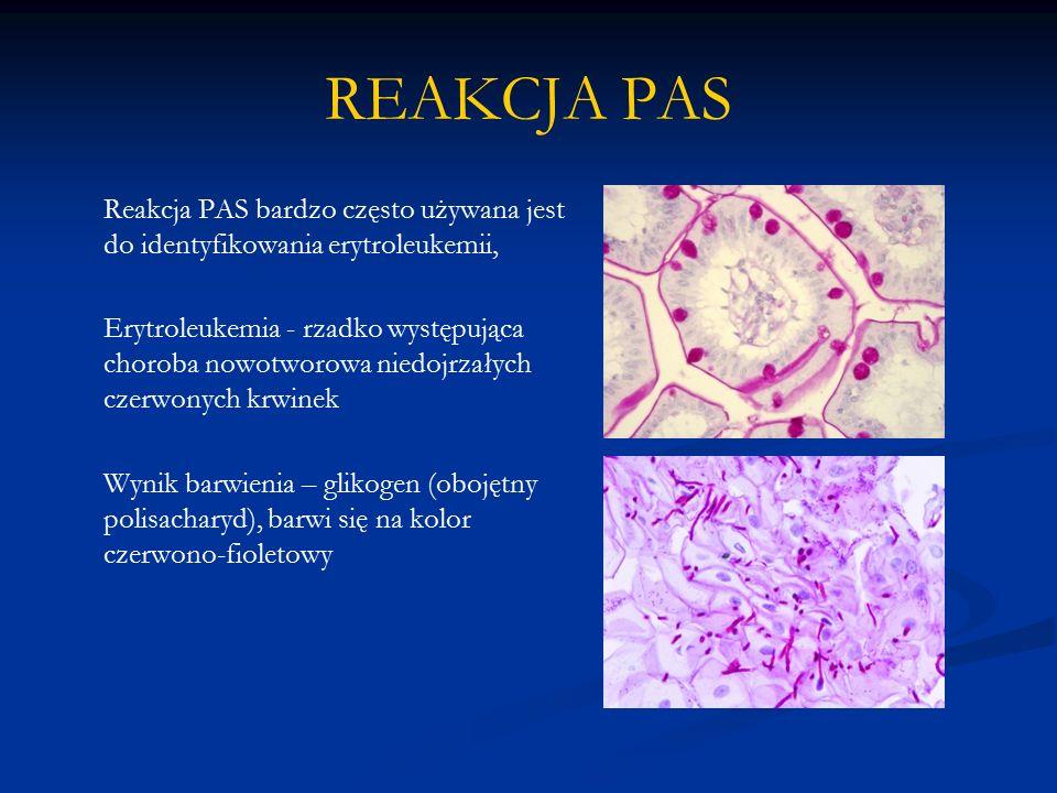 REAKCJA PAS Reakcja PAS bardzo często używana jest do identyfikowania erytroleukemii, Erytroleukemia - rzadko występująca choroba nowotworowa niedojrzałych czerwonych krwinek Wynik barwienia – glikogen (obojętny polisacharyd), barwi się na kolor czerwono-fioletowy
