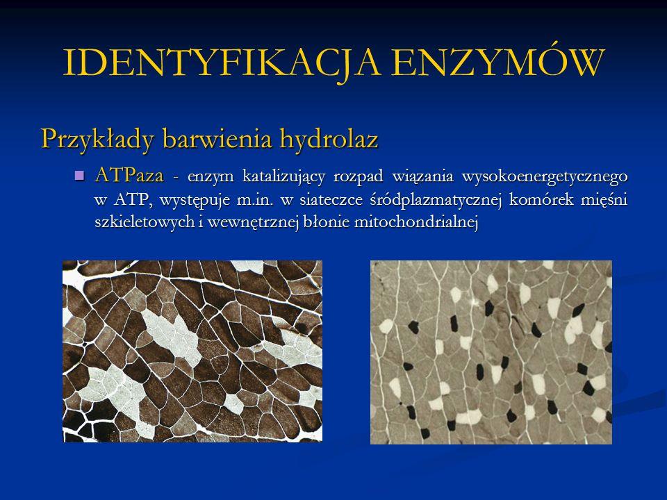 IDENTYFIKACJA ENZYMÓW Przykłady barwienia hydrolaz ATPaza - enzym katalizujący rozpad wiązania wysokoenergetycznego w ATP, występuje m.in.