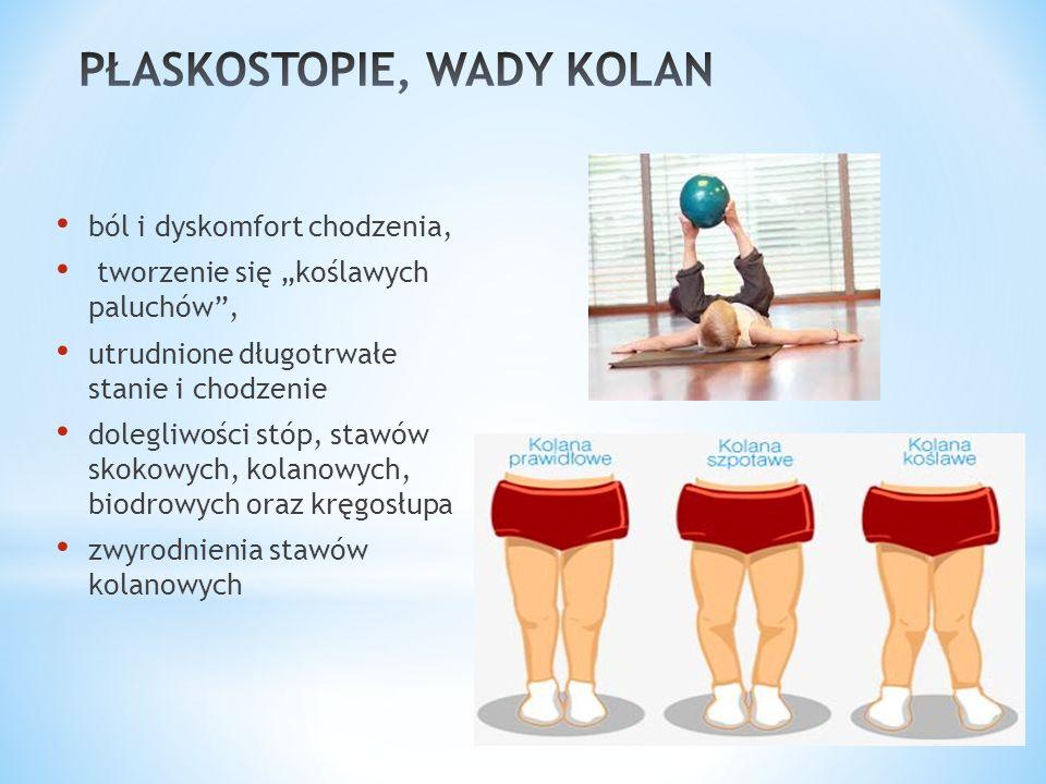 """ból i dyskomfort chodzenia, tworzenie się """"koślawych paluchów , utrudnione długotrwałe stanie i chodzenie dolegliwości stóp, stawów skokowych, kolanowych, biodrowych oraz kręgosłupa zwyrodnienia stawów kolanowych"""