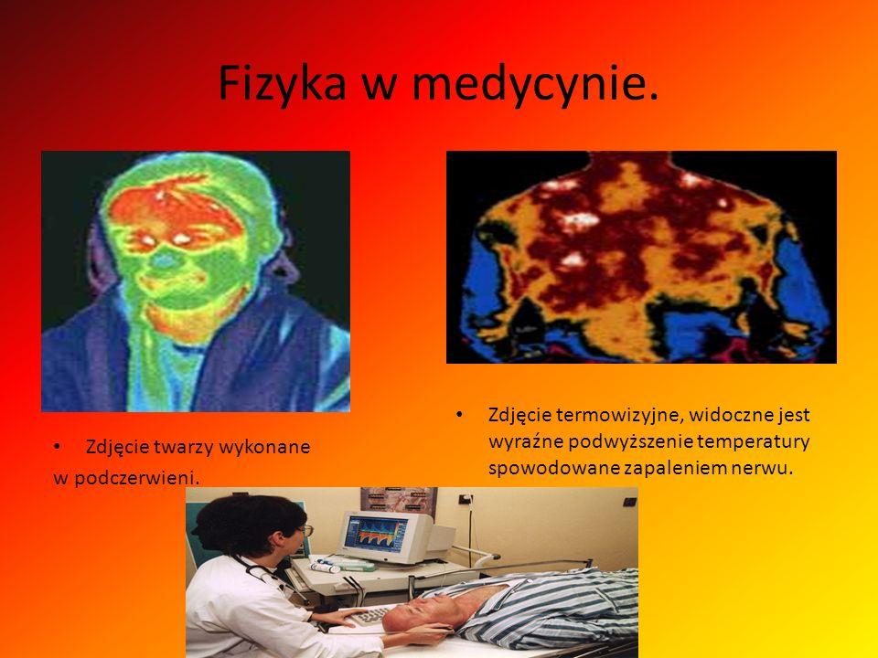 Fizyka w medycynie. Zdjęcie twarzy wykonane w podczerwieni. Zdjęcie termowizyjne, widoczne jest wyraźne podwyższenie temperatury spowodowane zapalenie
