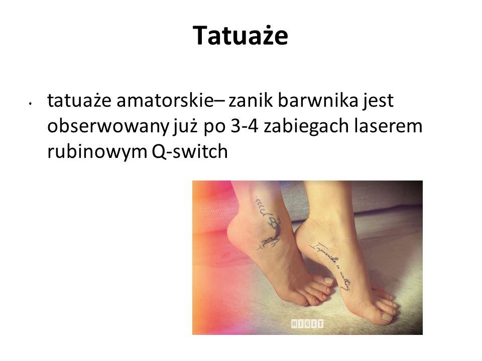 Tatuaże tatuaże amatorskie– zanik barwnika jest obserwowany już po 3-4 zabiegach laserem rubinowym Q-switch