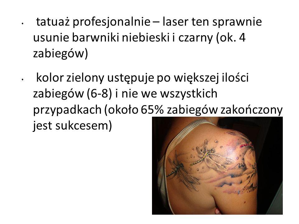 tatuaż profesjonalnie – laser ten sprawnie usunie barwniki niebieski i czarny (ok.