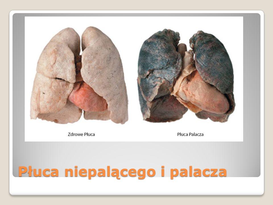 Płuca niepalącego i palacza