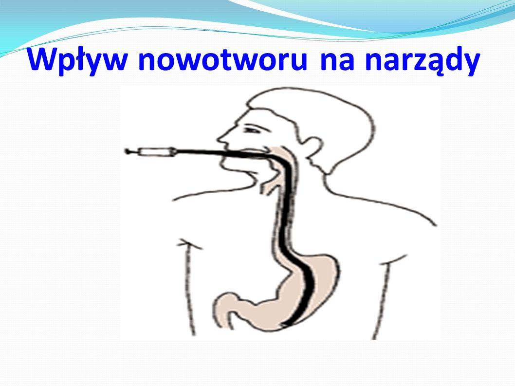 Wpływ nowotworu na narządy