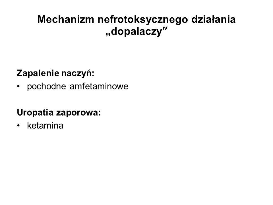 """Mechanizm nefrotoksycznego działania """"dopalaczy Zapalenie naczyń: pochodne amfetaminowe Uropatia zaporowa: ketamina"""